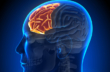 発達障害のイロハ⑤ ADHD症状の色々 その原因は脳にある!